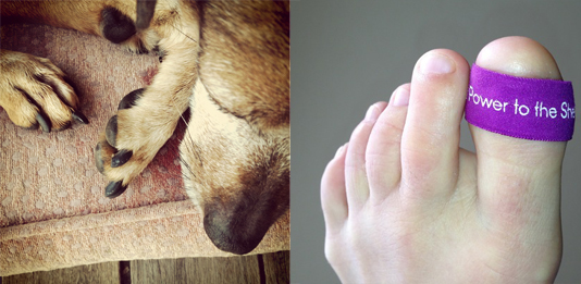 missing a toenail and proud of it physical funness for the motion